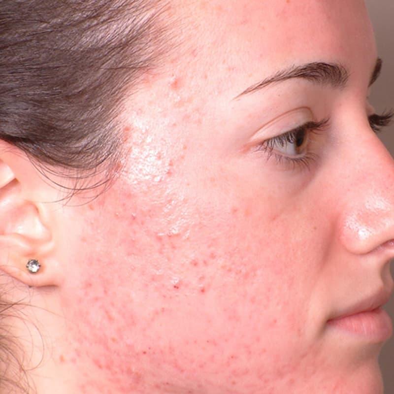 acne cmet quebec